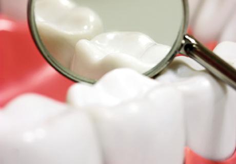 Nagy előrelépés a fogszuvasodás kimutatásában