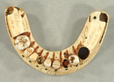 A halottak fogai: Történet a műfogsorokról