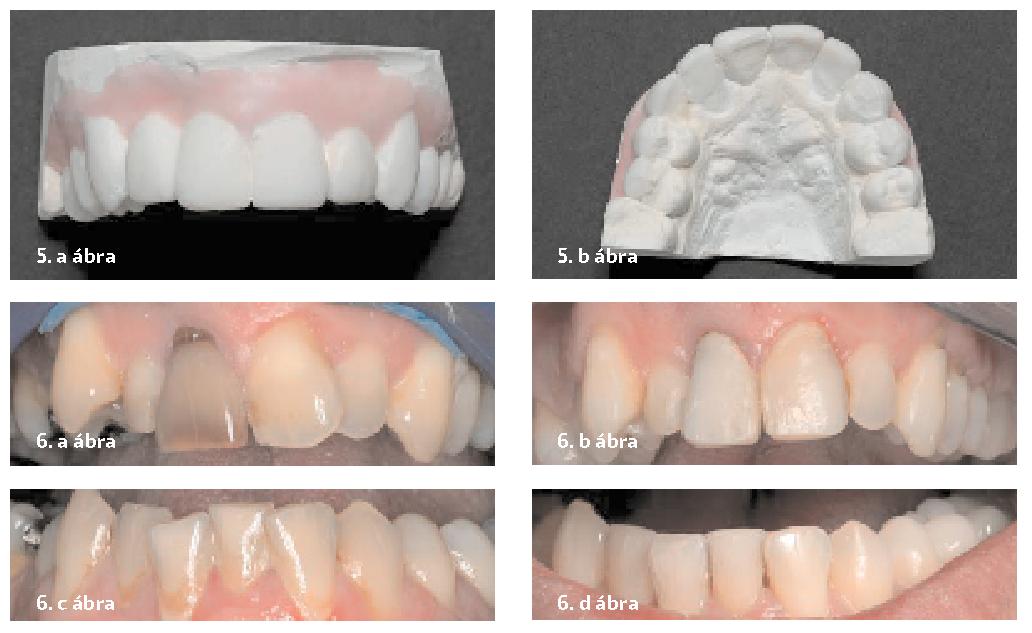 5. a–b ábra: A kezelés várható eredményének bemutatása. 6. a–d ábra: Kiindulási felvétel a felső fogívről (a). Jelentős mértékű javulás látható a 12 hetes fogszabályzó kezelés után (b). Kiindulási állapot az alsó fogívről (c). A 12 hetes fogszabályzó kezelés után látható állapot (d)