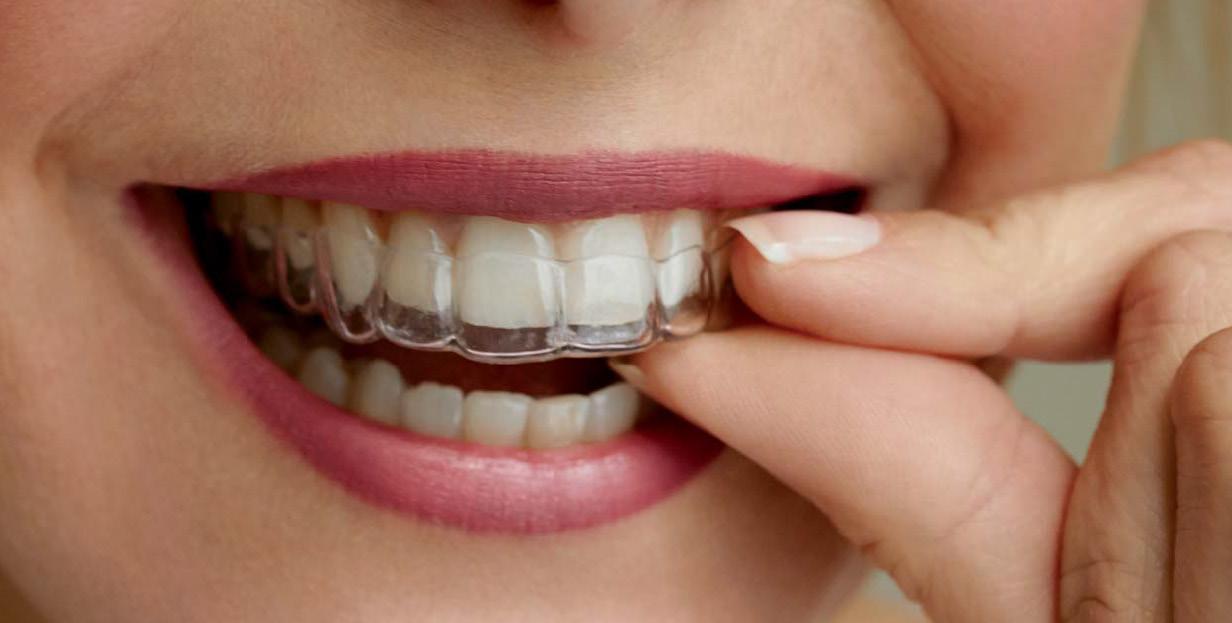 Újdonság az esztétikai fogászatban