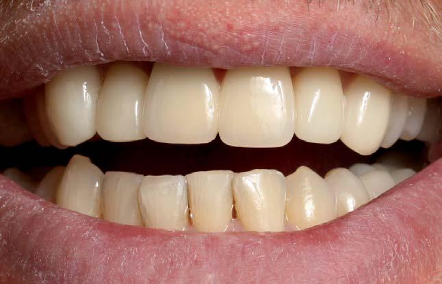 7. ábra: Fogfehérítéssel és a felső fogak héjakkal történő ellátásával elért végeredmény.
