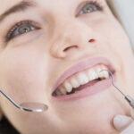 """A harapási viszony megváltoztatása a """"gummy smile"""" csökkentése érdekében"""