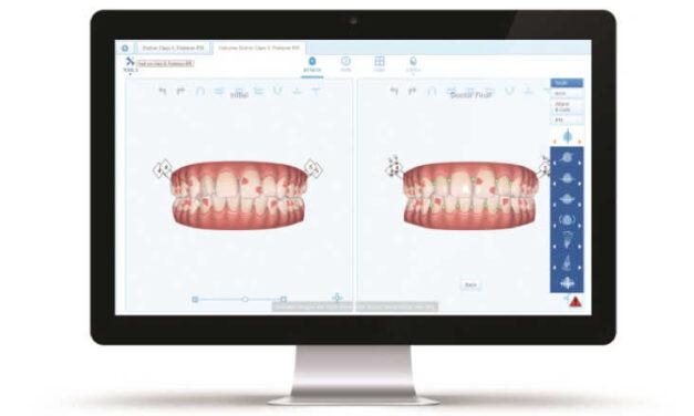 """Az Align Technology bővíti digitális platformját – Új felhő alapú Clinchek™ PRO 6.0 és ClinChek """"In face"""" megjelenítő eszközök az Invisaling kezelésekhez"""
