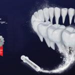Valódi recipiens csont regenerálás szeminárium Dr. Peter Fairbairnal – UK