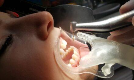 Az elszívás egy új eszközének jelentősége a fogászat új aerosol elleni küzdelmében járvány idején