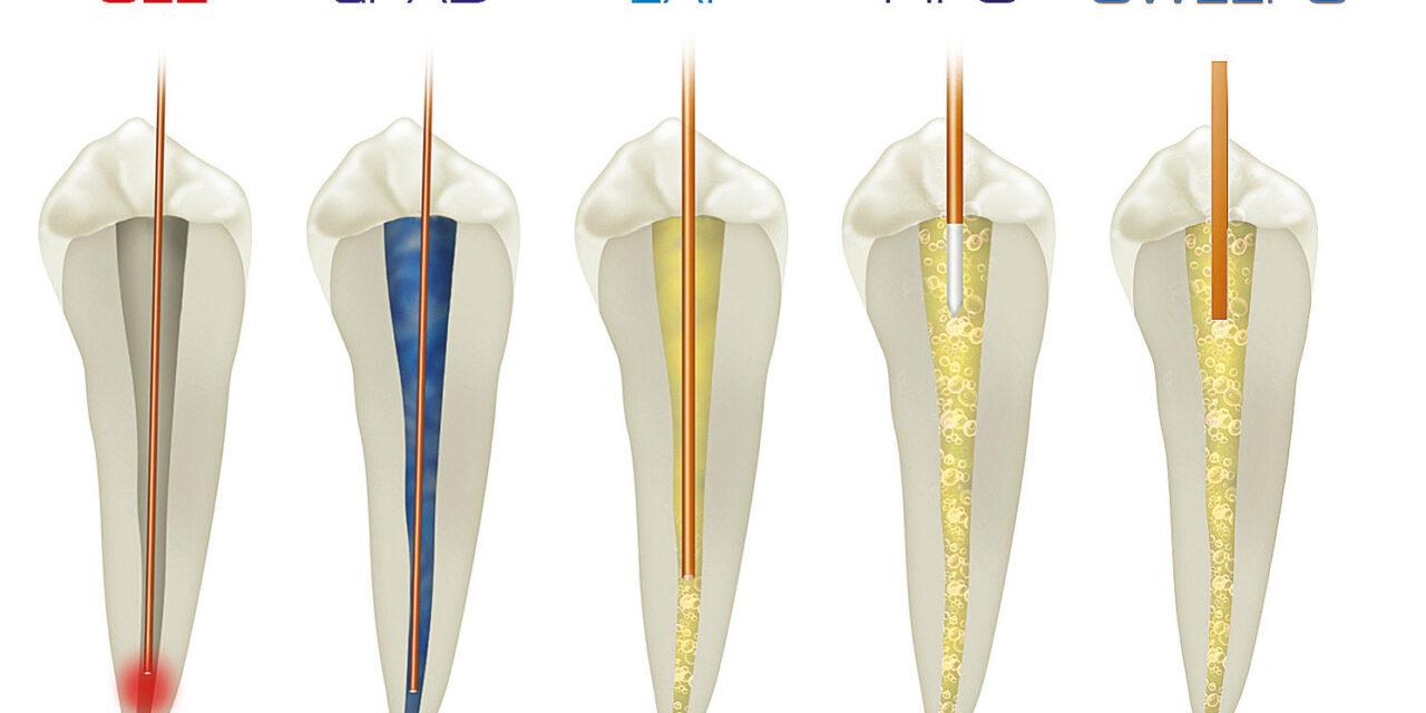 Innováció az endodonciában