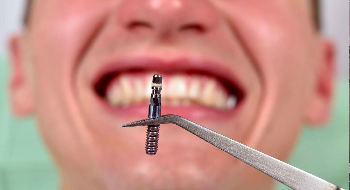 Hogyan károsíthatja a beteg rágási szokása a fogászati implantátumot?