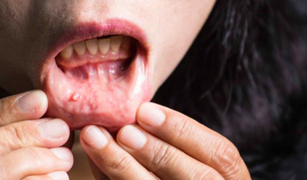 Nehézkes a fogászati kezeléshez való hozzájutás, növekszik az szájrák aránya