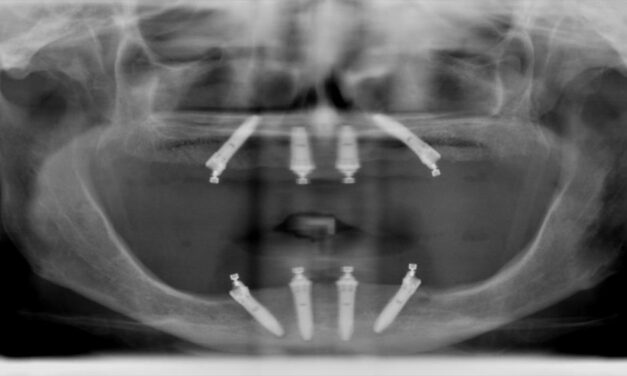 Malo Clinic protocol – immediate function concept for completely edentulous patient: a clinical report
