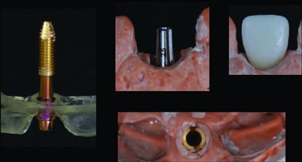 Irányított sebészet az esztétikai területen