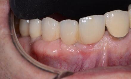 Multi Neo implantátum az esztétikai zónában, azonnali ideiglenes terheléssel