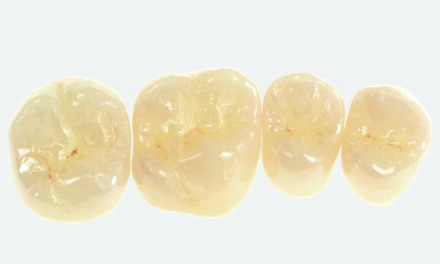 Full-mouth restoration with Zolid FX— a successful concept for sophisticated prostheses <br><span style='font-size:12px;'>Joachim Maier, Germany</span>