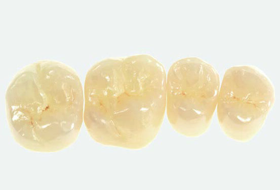 Full-mouth restoration with Zolid FX— a successful concept for sophisticated prostheses