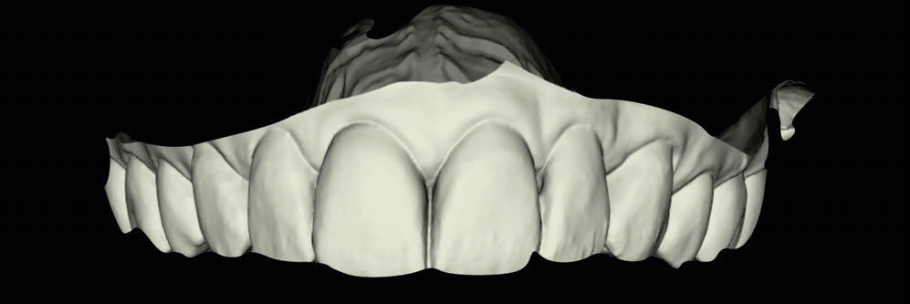 Tökéletes tervezés és megvalósítás  SLA-3D-nyomtatással <br><span style='font-size:12px;'>Dr. Mauro Fazioni, dr. Roberto Molinari, Andrea Lombardo</span>
