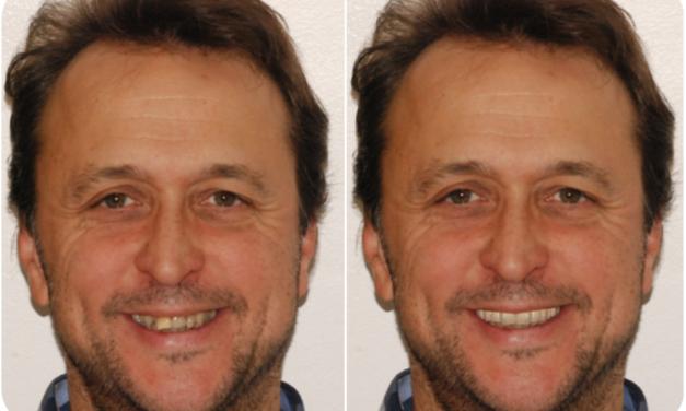 Esztétikai fogászati beavatkozások szakmai és egyéni igényeinek összehasonlítása egy klinikai vizsgálat során