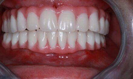 Azonnali implantáció és  azonnali terhelésű ideiglenes fix fogpótlás készítése, előrehaladott fogágybetegségben szenvedő páciens esetén <br><span style='font-size:12px;'>Dr. Záhonyi Balázs</span>