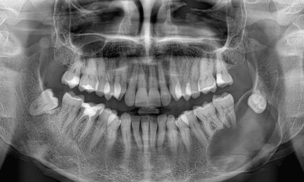 Mandibular dentigerous cyst <br><span style='font-size:12px;'>Enucleation and bone reconstruction</span>