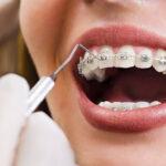 Ötből négy fogszabályozó orvos a felnőtt páciensek számának növekedéséről számol be