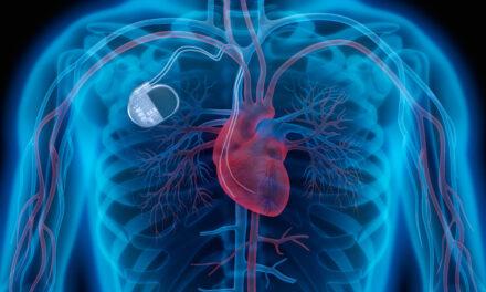 Pacemakerhajtó gépecske az érben