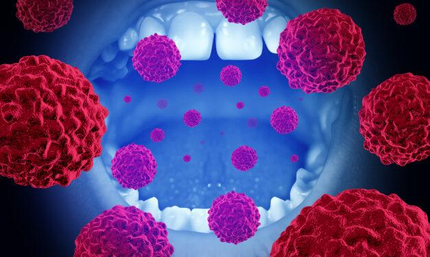 A szájrák és a nyaki daganatok kialakulásának újabb veszélyforrásai