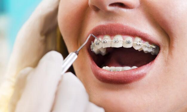 Orthodontia programok a Magyar Orthodontusok Társaságának ajánlásával
